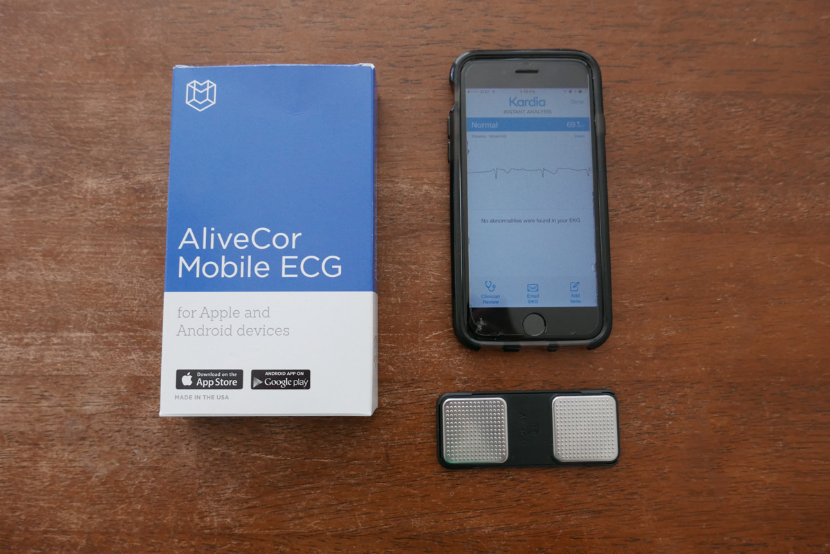 AliveCor Review for People with Heart Palpitations
